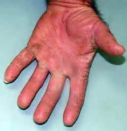 diabetes skin infections picture 6
