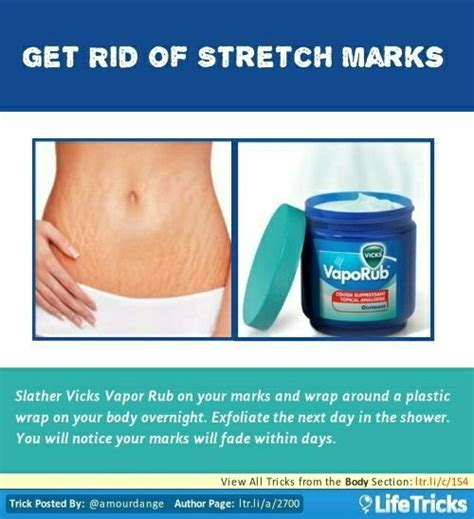 causes of stretch marks picture 11
