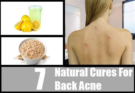 back acne treatment picture 10