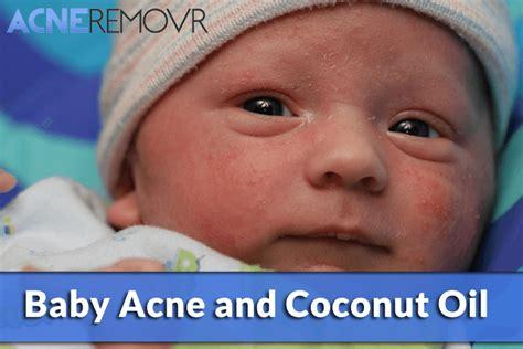 baby acne cream picture 6