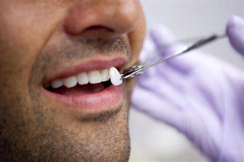 dentist porcelain teeth picture 13