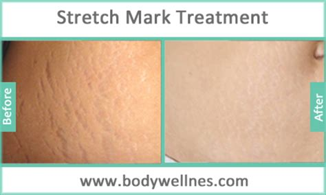 stretch mark treatment picture 7