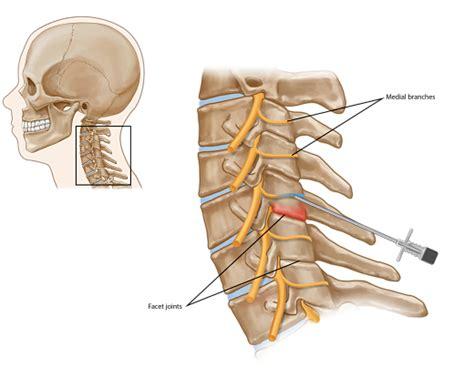 cervical facet joint procedure picture 9