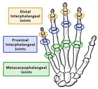 proximal interphalangeal joint pain picture 6