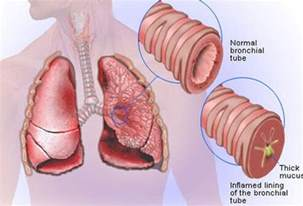 bacterial infection of the bronchial tubes picture 6