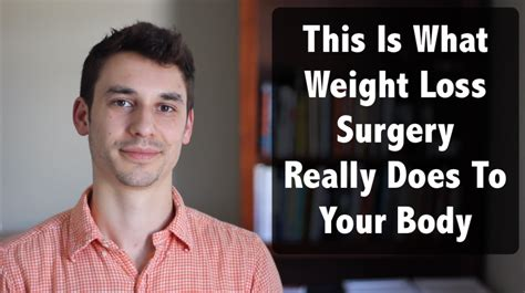 weight loss surger picture 9