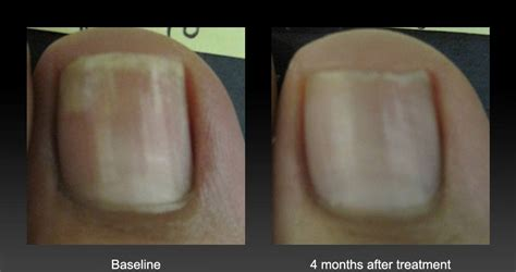 nail fungus laser treatment arkansas picture 10