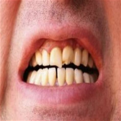 herbal treatment for bruxism picture 9