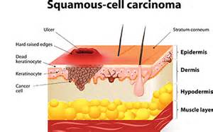 prognisis in squamous skin cell carcinoma picture 3