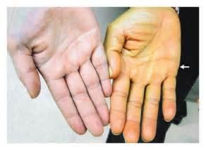 bilirubin itchy skin picture 1