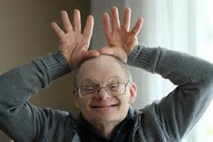 aging in down syndrome picture 6