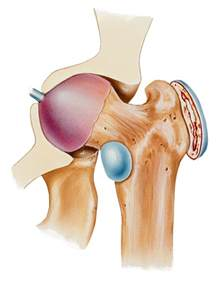 bursitis in many joints picture 2