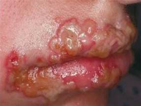herpes simplex type ii picture 3