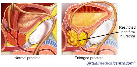 Prostate procedures picture 5