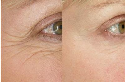 skin creams for deep creases picture 1