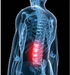 lower back pain picture 3