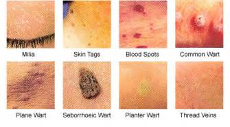 pictures of differnt types of female genital warts picture 2