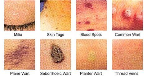 pictures of different kinds warts picture 6