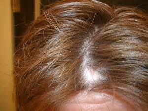 hair loss yeast infection picture 9