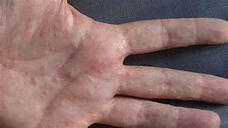 skin condition with small blisters picture 19