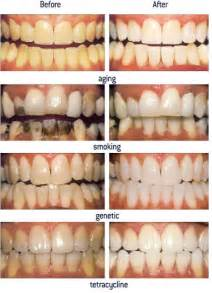 before and after teeth whitenint picture 6