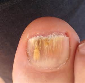 fungus in nail picture 7