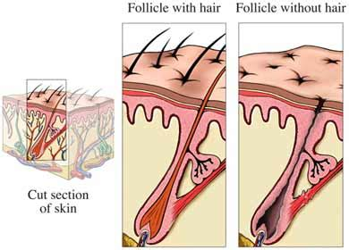 overactive thyroid and boils picture 3