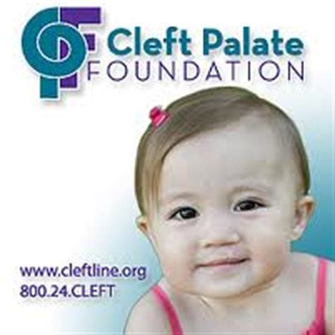cleft lip fellowships picture 13