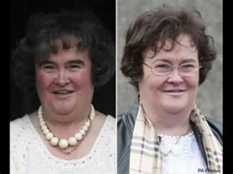 weight loss surgury picture 7