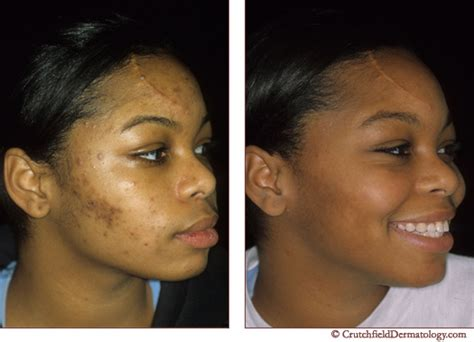 african american girl looking for acne treatment creams picture 1