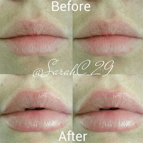 electric lip exfoliator and plumper picture 3