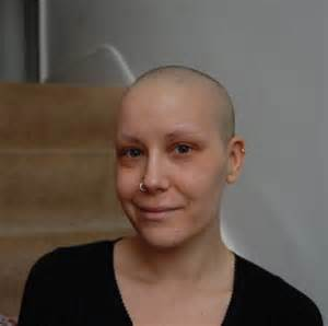 hair growth after radiation treatment picture 6