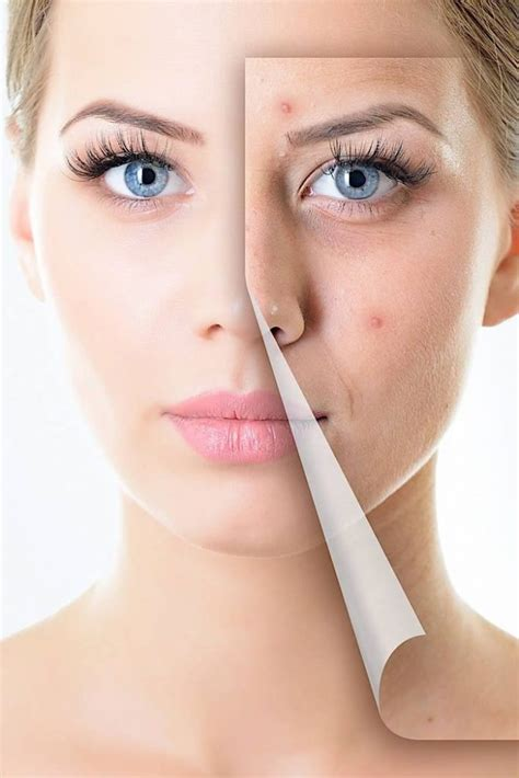 lasting skin solutions lawsuit picture 1