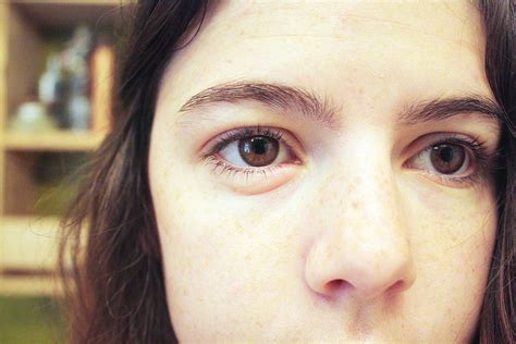 aging eyes picture 3