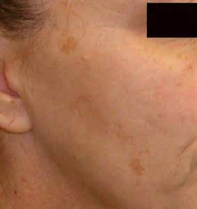brown liver spots on skin picture 5