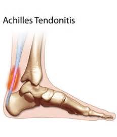 ankle joint effusion and ruptured archilles tendon picture 3
