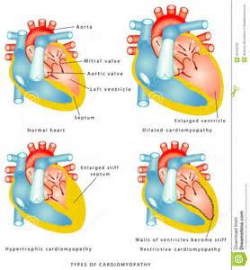 is thickening of your heart muscle deadly picture 13