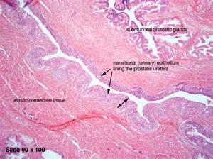 Irregular prostate picture 11