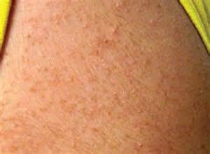 upper arm acne picture 3