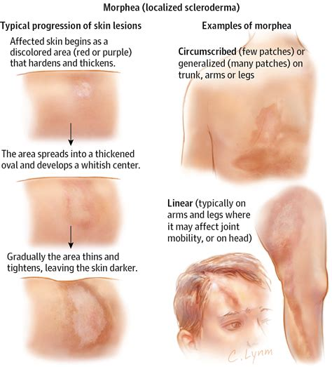 causes of changes of skin condition picture 2
