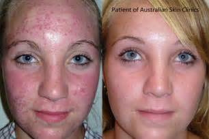 skin care for acne scars picture 3