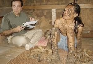 human papilloma virus first discovered picture 2