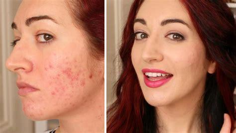 fashion fair cream to powder acne scars picture 10