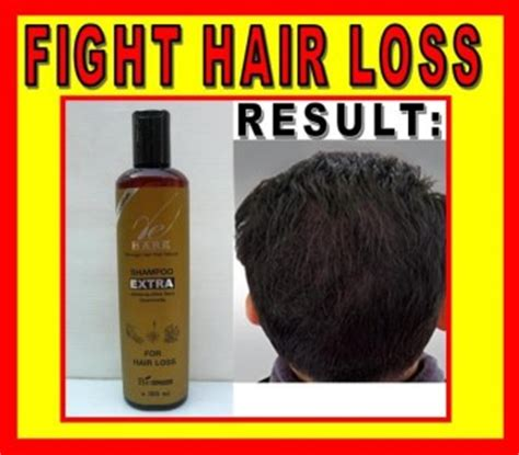 osi works hair loss picture 10
