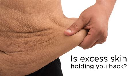 can losing weight cause skin rashes picture 3