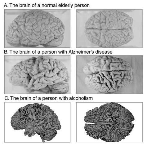 addictions aging alternative medicine beauty disease picture 5