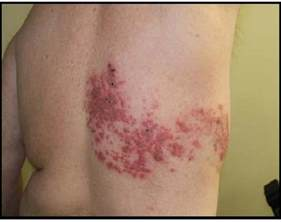 what are herpes shingles picture 3