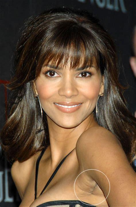 celebrity breast augmentation picture 14