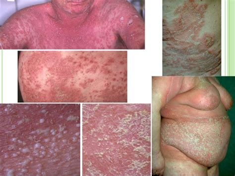 causes of changes of skin condition picture 1
