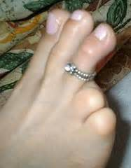 women with amputated fingers and toes picture 3